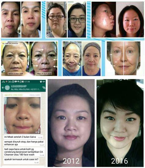 Alat Setrika Wajah Galvanic setrika wajah aman ageloc galvanic spa system nuksin