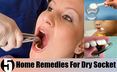socket home remedies treatments and cures