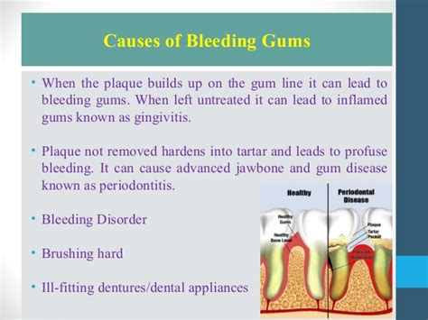 What Could Be The Cause Of Blood In Your Stool by What Is The Cause Bleeding Gums