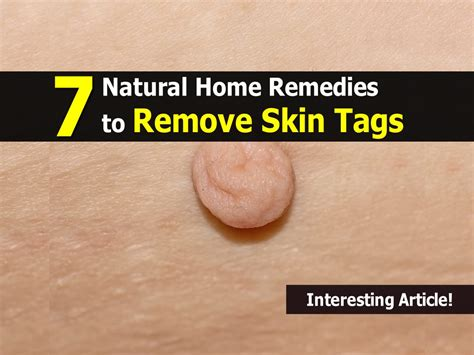 7 home remedies to remove skin tags