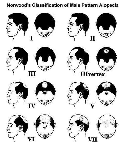 mens hairline types receding hairline