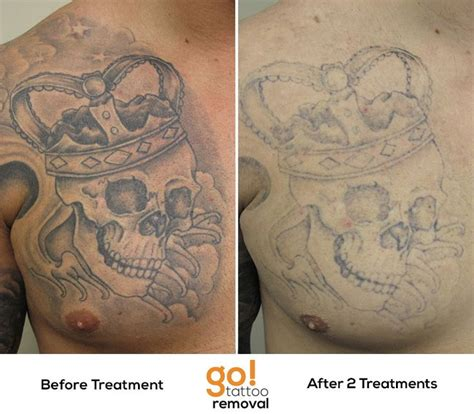 chest tattoo removal phenomenal fading on this black and grey chest plate after