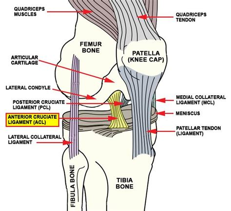 torn acl home treatment 25 best ideas about acl tear symptoms on aching knees symptoms of torn