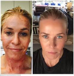 chelsea handler s face transforms after profractional