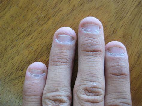 chewing nails nail biting deformation