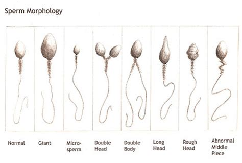 sperm of a girl will look like foods to increase sperm count and production