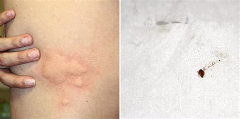 what can you put on bed bug bites how to know if you have been bitten by a bed bug pestradar