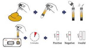 fecal occult blood test methods principle procedure
