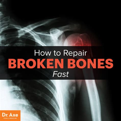 Healthy Foods To Heal A Broken by Nutrition For Bone Healing Besto