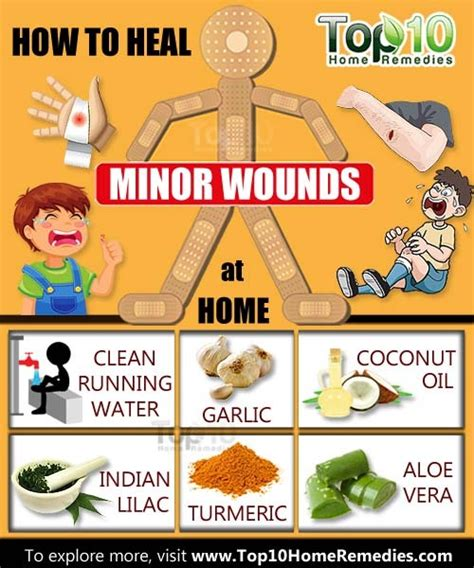 how to heal rug burn on fast how to heal minor wounds at home top 10 home remedies