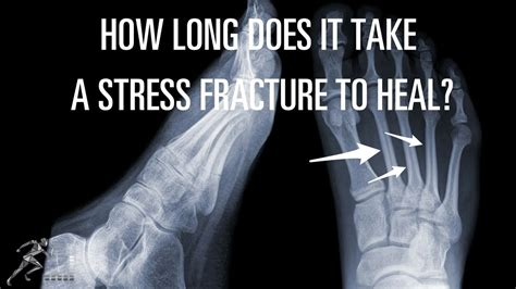 how long does it take to heal a tattoo how does it take a stress fracture to heal