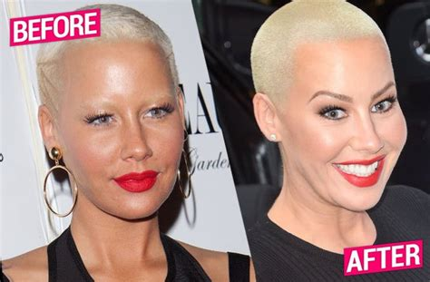 rose tarlow plastic surgery plastic fantastic bootyful amber rose s surgery obsession