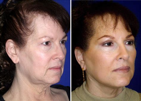 hairstyles for sagging jowls hairstyles for sagging jowls hairstylegalleries com