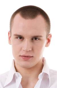 different types of receding hairlines pictures of mens thinning and balding haircuts