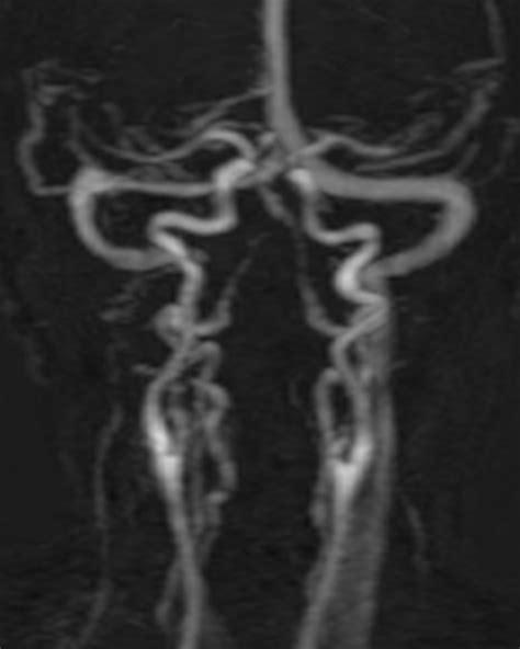 patiente de 62 ans paralysie des nerfs mixtes droits