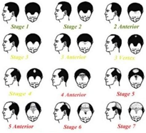 Hair Type Scale by Using The Norwood Scale To Identify Hair Loss