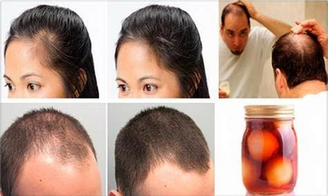Do You Want To Hair by Do You Want To Get Your Hair Home Treatment For Baldness