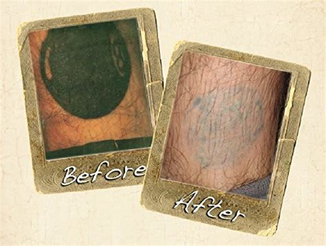 wrecking balm tattoo removal fade system wrecking balm fade system buy in uae