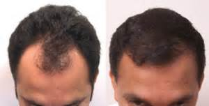 hair restoration hair transplant neograft orlando neograft fue hair transplant world leader in fue technology