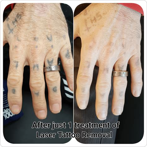 laser tattoo removal after one treatment gallery c h laser treatments removal gloucester