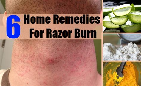 top 6 home remedies for razor burn treatments