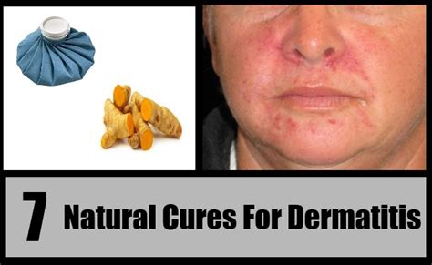 7 effective cures for dermatitis how to cure