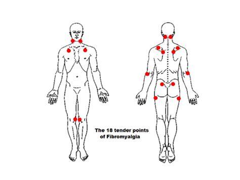fibromyalgia points tenderness diagram fibromyalgia points tenderness diagram 28 images