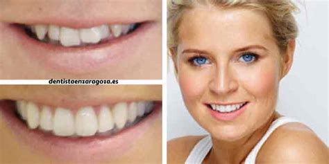 imagenes reales invisalign ortodoncia invisible invisaling zaragoza informaci 243 n y