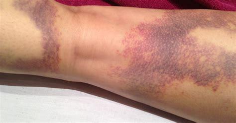c section bruising image gallery excessive bruising