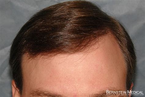 wiry 4a hair search results hairstyle galleries wiry hair 4a hairstylegalleries com