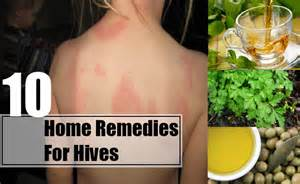 home remedies for hives hives home remedies causes symptoms treatment diet