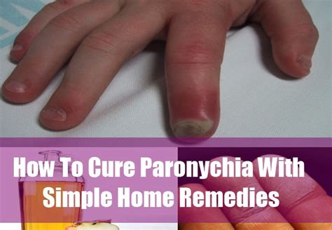 paronychiaia paronychia cure home remedies for