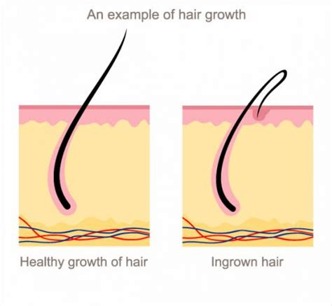 bottle to draw out in grown hair herpes hair follicle infection hairsstyles co