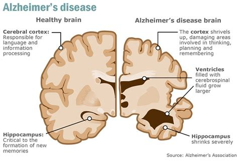 alzheimer s blood test may predict alzheimer s disease 3 years before