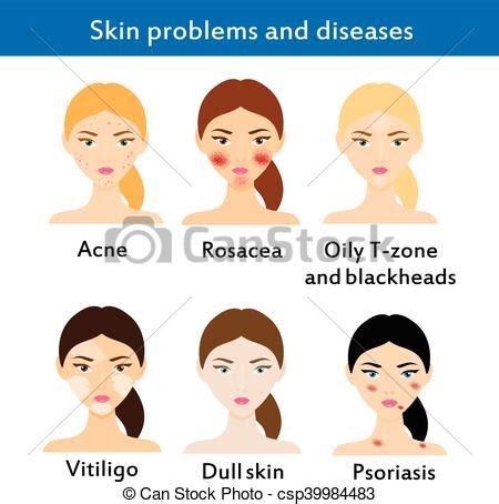 skin problems treatments washing stock vector royalty free 623665466 skin problems and diseases acne rosacea vititligo and vector search clip