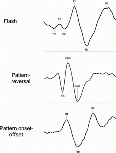 pattern reversal evoked potentials visual evoked potential ento key