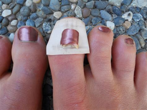 bruised nail bed toenails driverlayer search engine