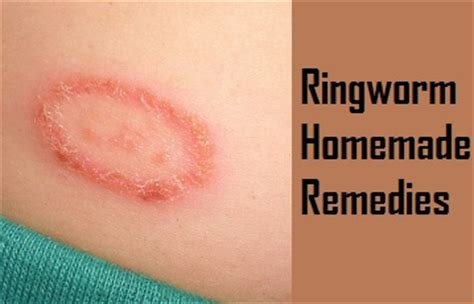 ringworm treatment remedies to treat ringworm in humans onlinehomeremedies