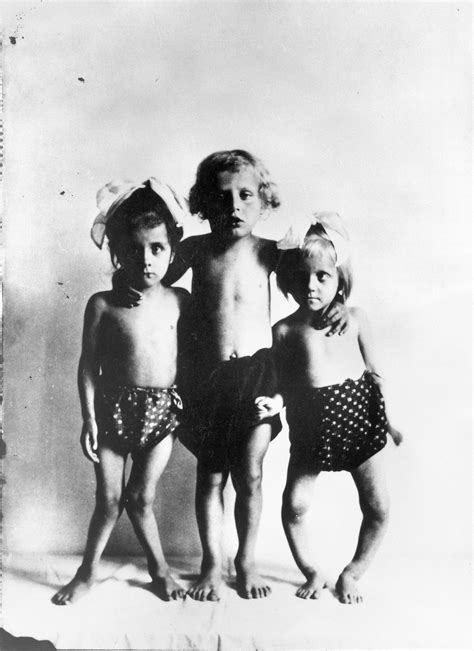 Children Of The L Wiki file photograph three children with rickets wellcome l0014375 jpg wikimedia commons