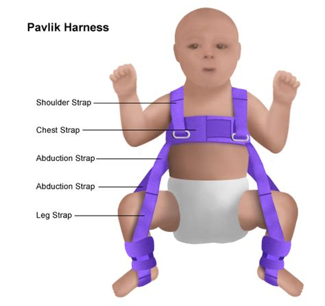 developmental dysplasia of the hip causes symptoms