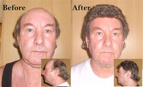 hair replacement system customer s photos of non surgical hair replacement systems