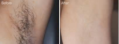 laser hair removal photos laser hair removal nima