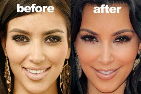 kim kardashian before surgery kim kardashian before and