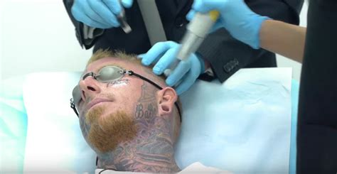 face tattoo removal this get his tattoos removed with a laser