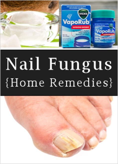nail fungus what it is how to treat it tipnut