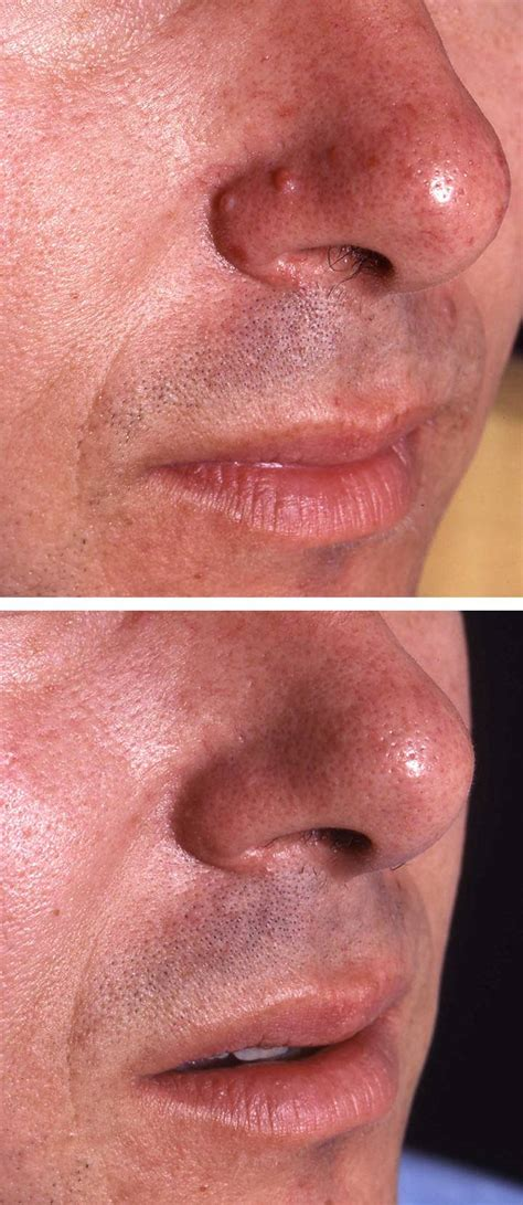 mole removal treatment  afters  aesthetic
