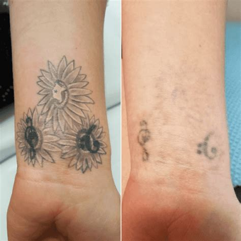 before amp after tattoo removal laser focus tattoo removal