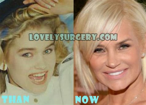 yolanda foster uses botox and fillers yolanda foster plastic surgery before and after photos
