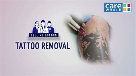 tattoo removal facts surgical facts about tattoo removal dr satish arolkar