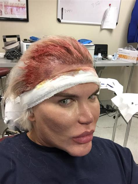 human barbie doll ribs removed human ken doll rodrigo alves prepares for op to remove six